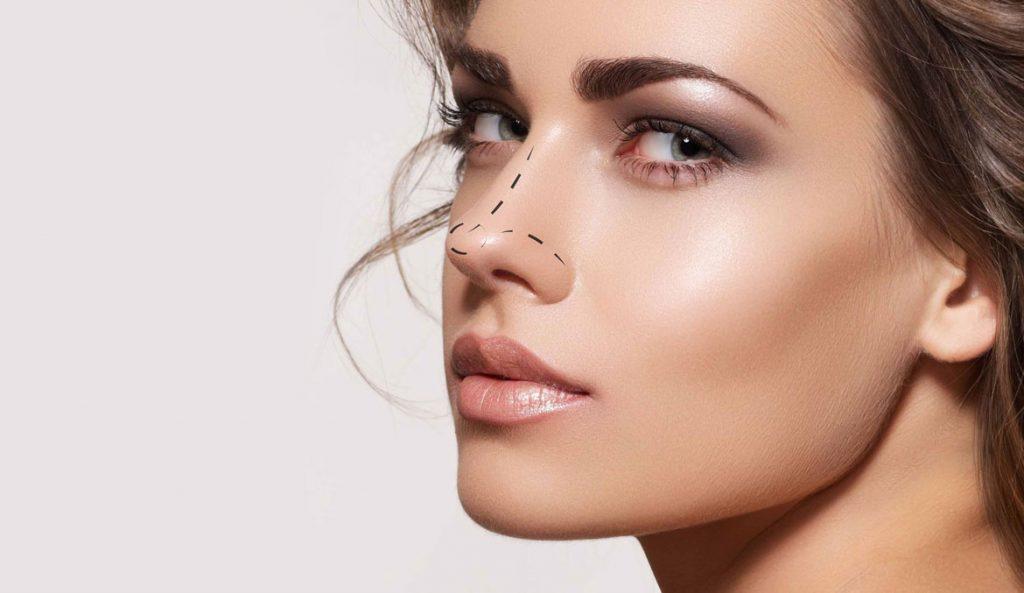 Rinoplastia u operación de nariz - Centro Rancati